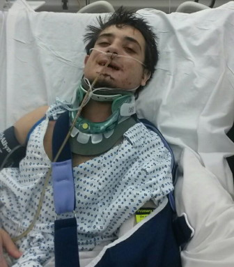 Michael Bivona, Jr. in the hospital following the Oct. 30, 2014 head-on crash on Silvermine Road. A preliminary police report of the accident indicates that a New Canaan woman traveling at excessively high speed caused the crash by rear-ending the vehicle in front of her. Contributed