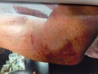 The upper arm of the woman who suffered the dog attack at Waveny in June 2014, leading to a restraining order put on the animal. Photo courtesy of the New Canaan Police Department
